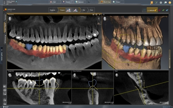 Technische Ausstattung der Praxis: computergestützte 3D Implantologie